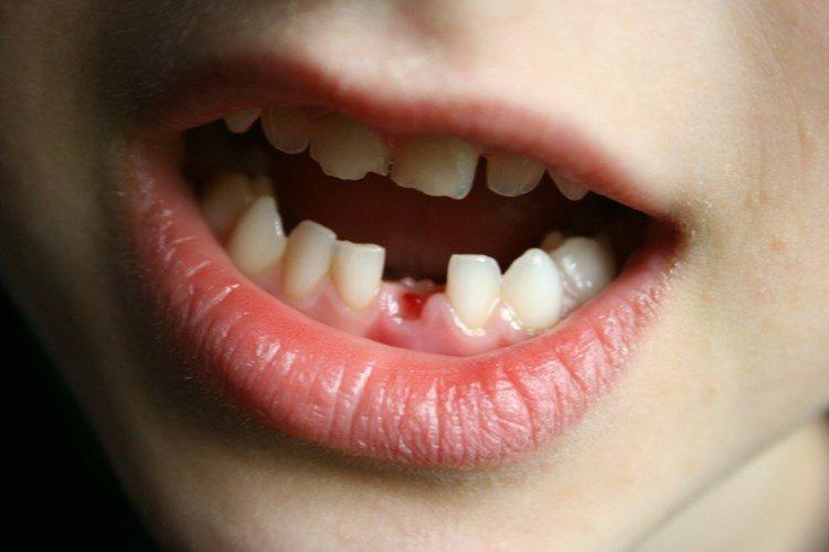 Trẻ bị gãy răng sữa có mọc lại không? Khi nào trẻ bắt đầu thay răng sữa?