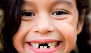 Bé thay răng cửa lâu mọc tại sao? Có nguy hiểm không?